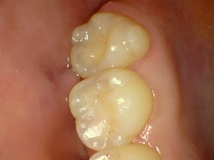 an after photo of new white fillings that blend in with the tooth much better