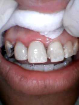 after photo of the teeth completely rebuilt using fiber posts and white filling material and custom staining