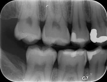 xray of teeth with decay