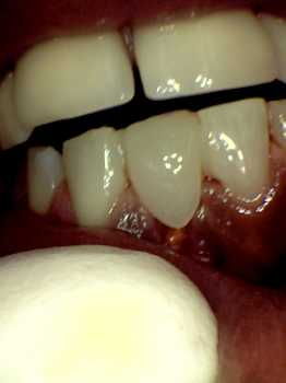 after photo of temporary replacement of the gold tooth that was taken out with a white tooth